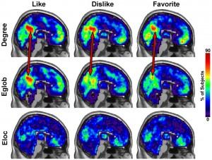 Keadaan precuneus otak ketika mendengarkan musik yang disukai (kiri), tidak disukai (tengah dan musik favorit (kanan) untuk degree, efiisiensi global dan efisiensi lokal